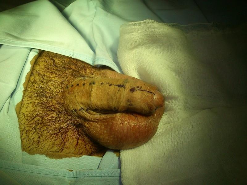 antes de la operacion