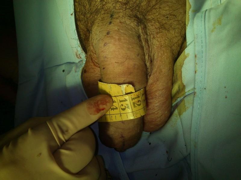 resultado al final de la operacion