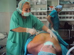 operacion ginecomastia 5