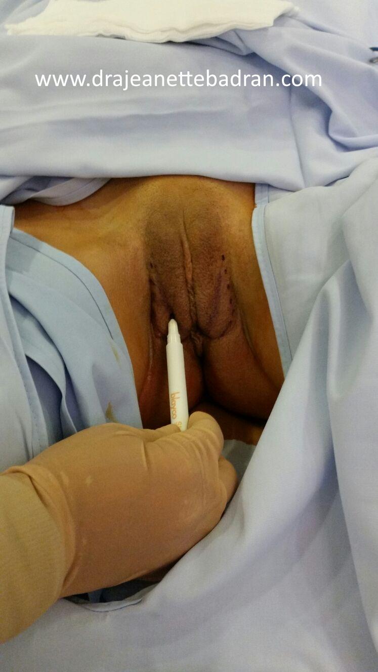 reduccion-labios-menores-mallores-antes1
