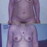 abdominoplastia-mamas-antes-despues1