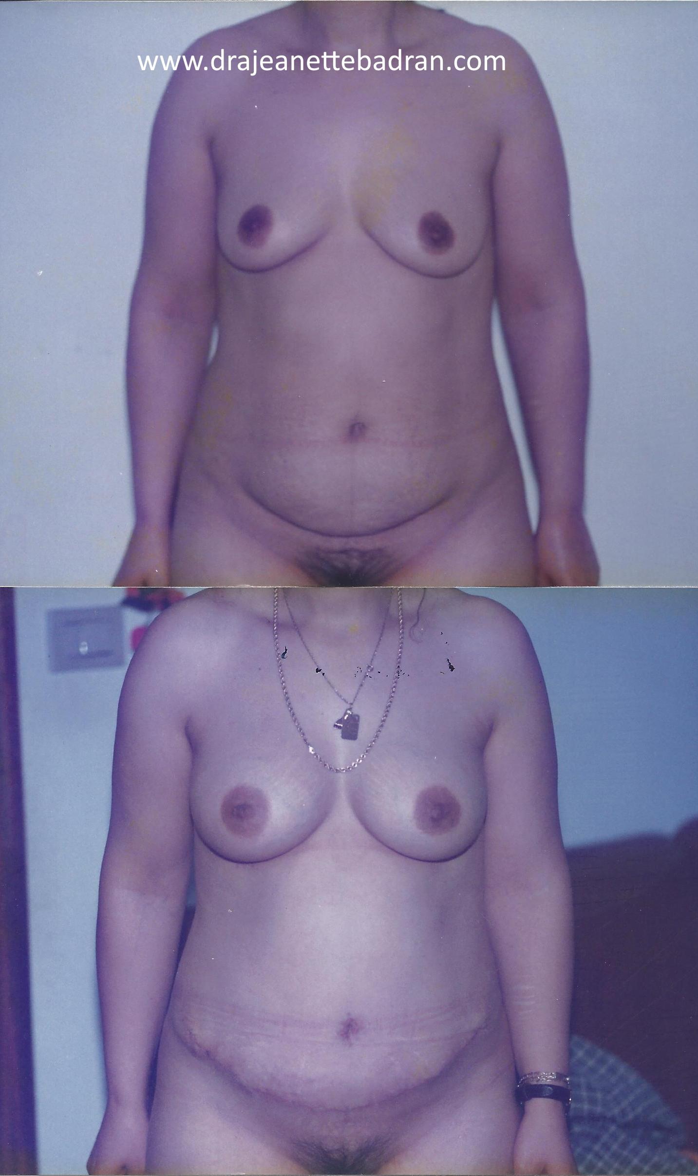 abdominoplastia-mamas-antes-despues1